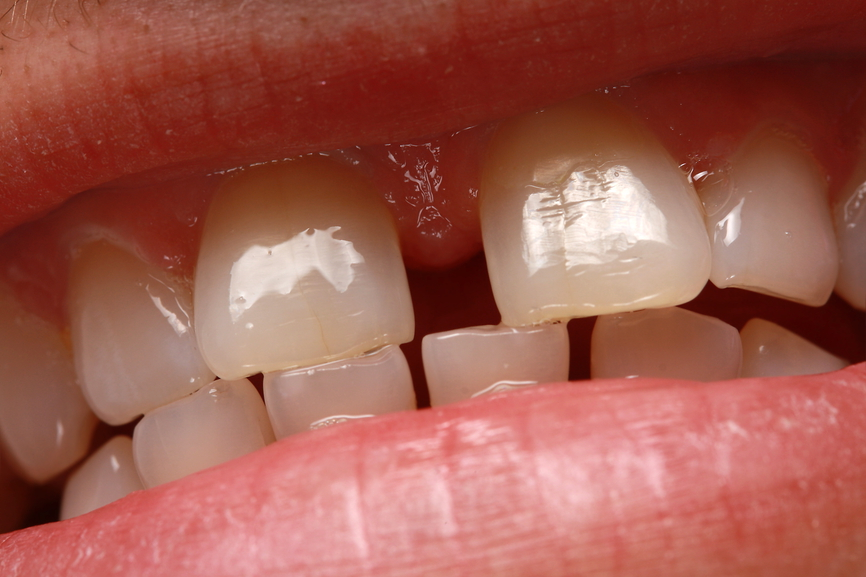 неровные зубы.jpg