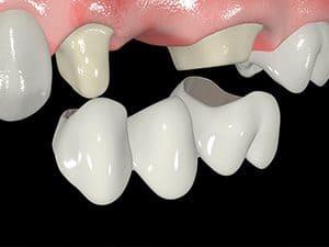 Сколько по времени ставят коронку на зуб - ПрофиМед