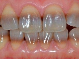 Что представляют собой тетрациклиновые зубы