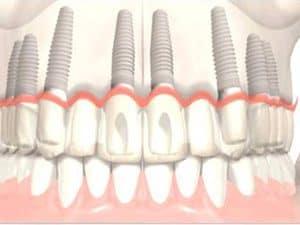 Мостовидные протезы на имплантаты